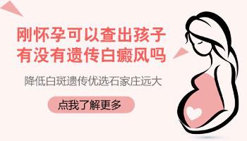 怀孕期间能检查出孩子遗传白癜风吗