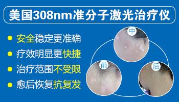 为什么308光疗后白斑处更明显了