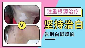 涂抹增白护肤品可以导致白癜风吗