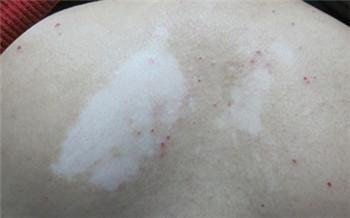 背上有白斑图片 长白斑的疾病都有哪些