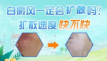 肩膀脖颈处有白斑大概半个月了会不会长到别的位置