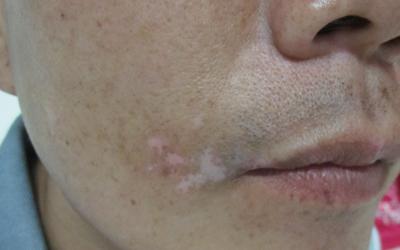 脸颊长有白斑会是白癜风吗
