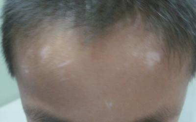 额头和眉毛处大块白斑
