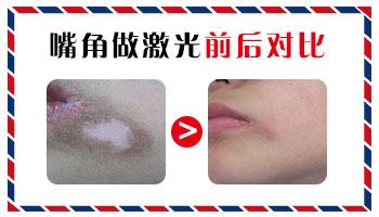 嘴周围上有白斑能治疗吗 哪种方法效果好