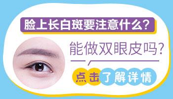 眼皮白癜风能割双眼皮吗