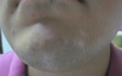 下巴皮肤三处有点白两个月了像是白癜风