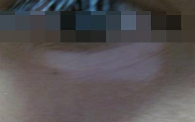眼睛下面一块白色斑点是色素减退斑还是白癜风