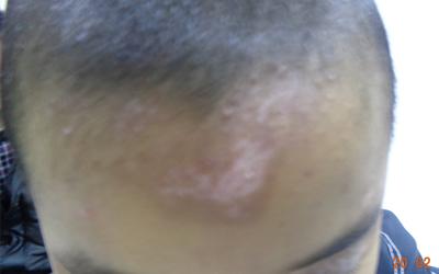 额头晒伤皮肤白白的属于白癜风吗