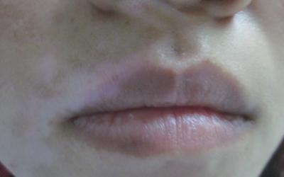 上嘴唇的唇线上有两个白点是什么