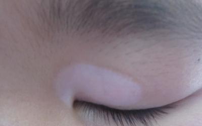 眼皮上一小块白斑怎么回事