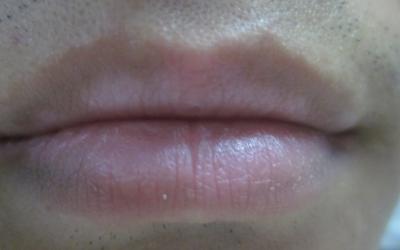 下嘴唇中间白了一块是怎么回事