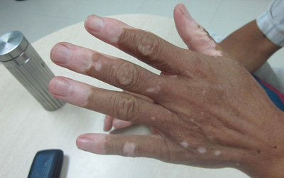手指末端皮肤变白图片