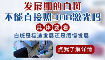 手指白癜风进展期能进行光疗吗