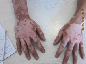 两个手指上都有白癜风怎么治疗好得快