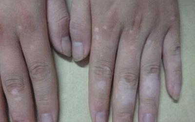 手指关节全部都有不太明显的白斑是什么