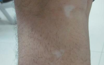腿上有小圆点白斑是怎么回事