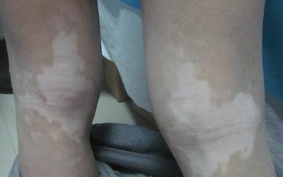 大腿上长了一块白斑是怎么回事