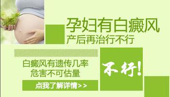在治疗白癜风的同时发现怀孕了孩子能要吗
