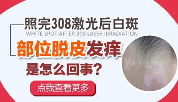 白癜风激光后脱皮是不是照光剂量太大了