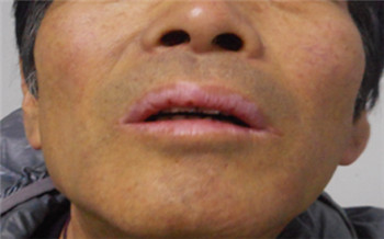 上嘴唇有三个白色的小点点怎么回事