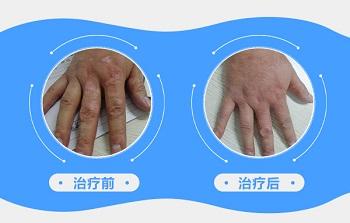 手指白癜风植皮一年后康复图