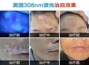激光治疗白癜风嘴唇效果好吗