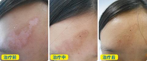 小面积白斑植皮六天后的效果图