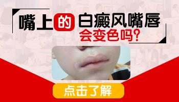 嘴唇边缘发白图片是什么样