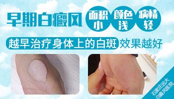 幼儿胸口出现3片白斑