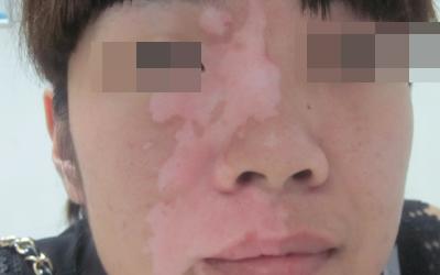 擦化妆品起白斑是得了什么病吗