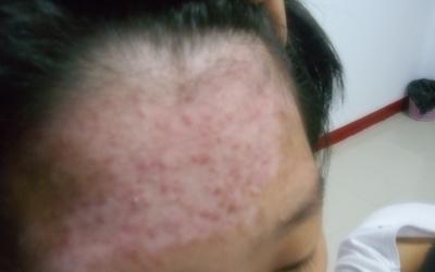发际线一圈的皮肤比正常皮肤白