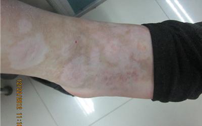 脚背上有小白点近才发现的白点是什么