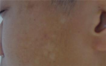 小孩子缺维生素引起白斑图片图解