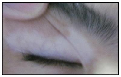 睫毛变白睫毛上边的眼皮也变白了