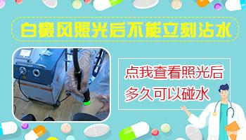 白癜风激光治疗多长时间不能碰水