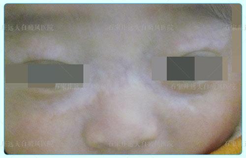 婴儿耳朵和脸颊之间的皮肤白