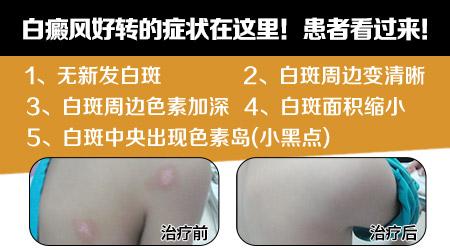 白癜风用308激光后出现红肿起皮正常吗