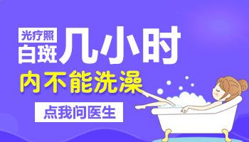 白癜风照了光疗多长时间能洗澡