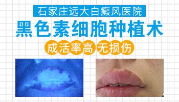 稳定性的白斑植皮一次能成功吗