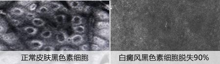 """""""双节同庆 献礼健康""""皮肤CT检查免费,限时抢!"""