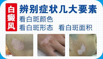 石家庄哪家医院治皮肤病好 白斑是不是白癜风