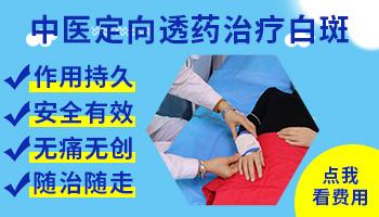 石家庄白斑病的中医治疗方法是什么