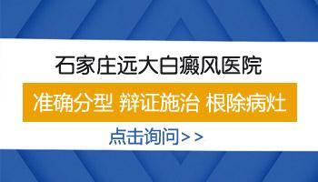 河北省的医院治疗白癜风怎么样