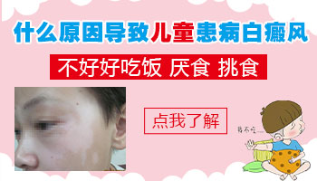 7岁女宝挑食鼻子旁边白了一大块