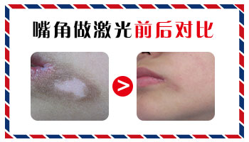 七个多月孩子嘴角有一块皮肤很白