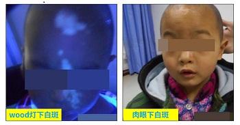 婴儿脸上出现白斑是缺锌还是肚里有虫