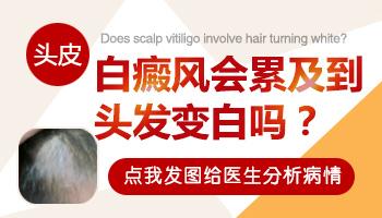 儿童头皮白癜风头发也白了应该怎么治疗