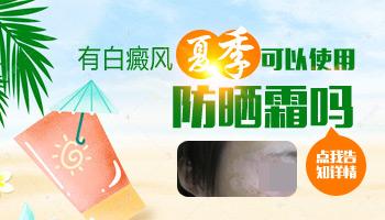 女性白癜风患者夏季用什么防晒霜