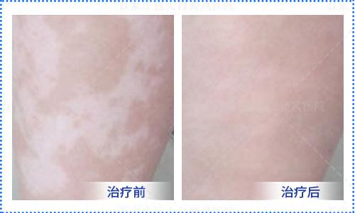 女人大腿内侧有大白斑块