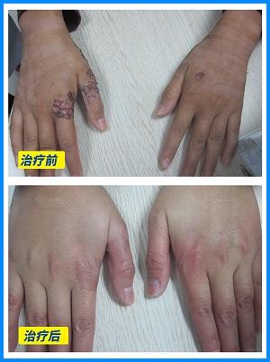 青少年手上的白斑植皮后的图片